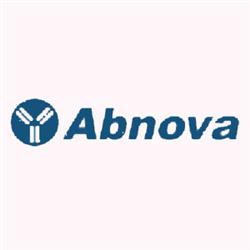 Apoptosis (Human) Antibody Array (G)